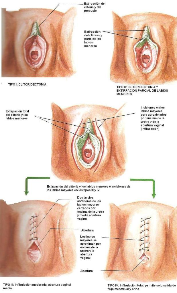 Ilustración explicativa de las distintas mutilaciones genitales femeninas